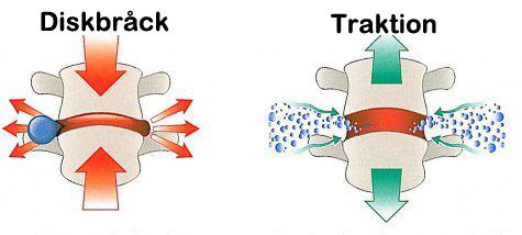 Traktion i ryggraden vid diskbråck